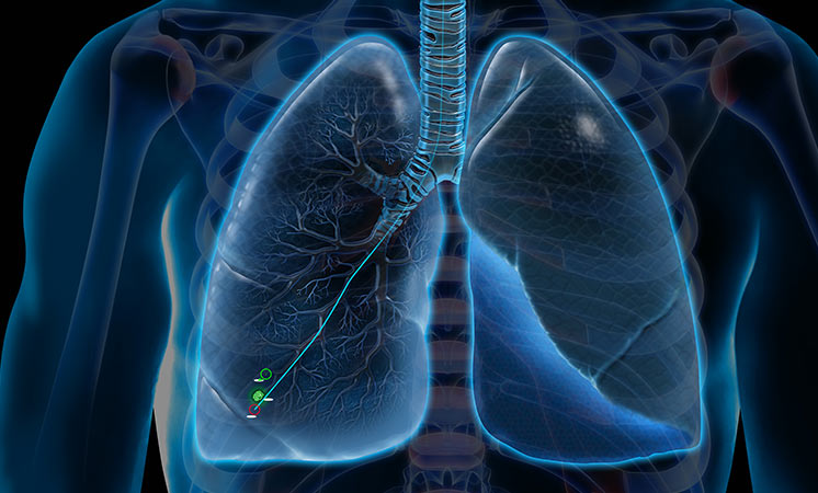 Veran - Lungs fiducial placement